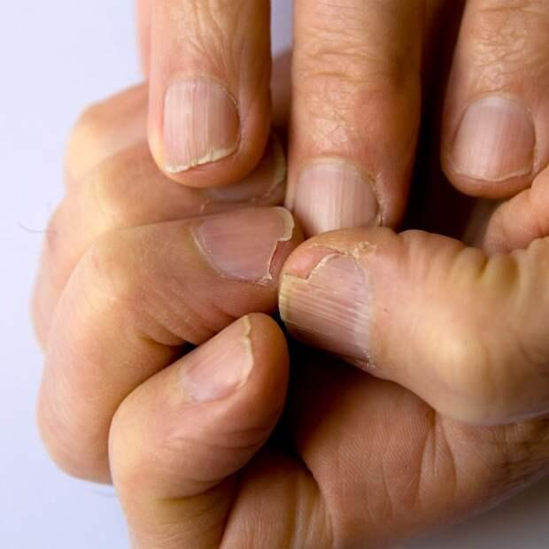Отартрита домеланомы: 10 признаков серьезных заболеваний, которые можно определить поногтям