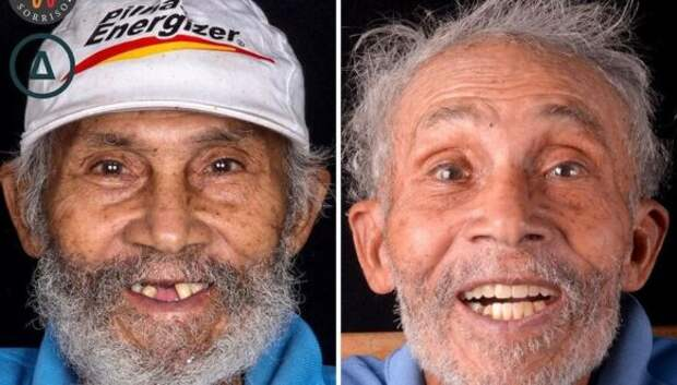 30 фото до и после того, как людям вернули улыбку