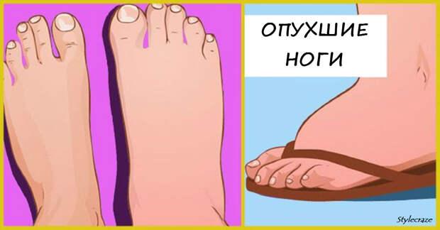 Опухшие ноги: 8 тревожных болезней, о которых они предупреждают
