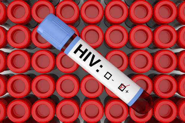 Врач-инфекционист рассказала про ВИЧ и СПИД