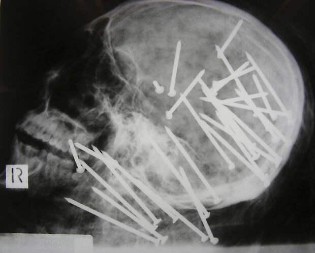Cамые странные рентгеновские снимки