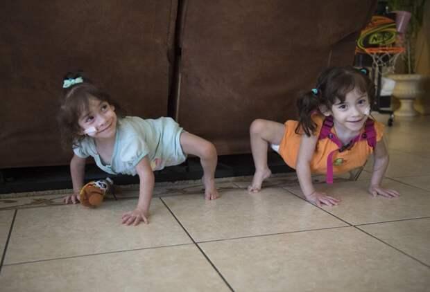Сегодня девочки ведут проходят серьезную реабилитацию и активный, насколько им позволяет их физическое состояние, образ жизни, близнецы сиамские, бывает же, выросли, жизнь, интересное, разделили
