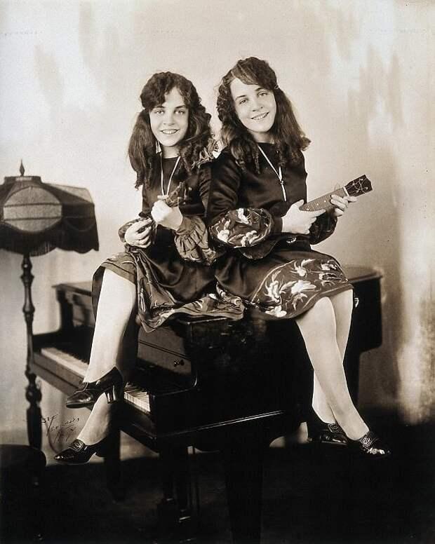 Сиамские близнецы Хилтон: скованные на всю жизнь британия, голливуд, звездная карьера, история успеха, необычные люди, сестры Хилтон, сиамские близнецы, через тернии к звездам