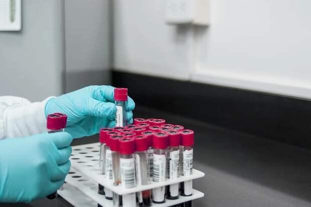 Резус-фактор и группа крови влияют на вероятность заражения COVID-19, установили ученые