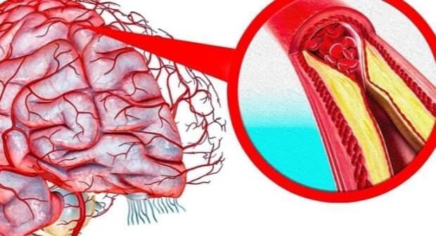 Рецепты для очищения сосудов головного мозга...