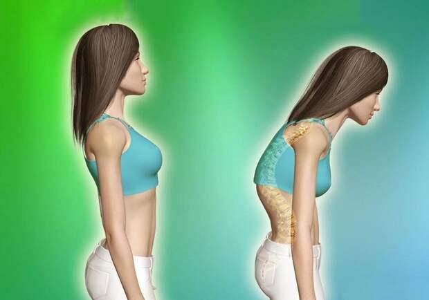 6 причин боли в спине. Какие привычки ее вызывают?
