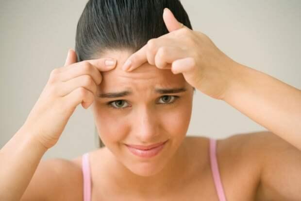 8 простых шагов для домашнего лечения подростковых прыщей