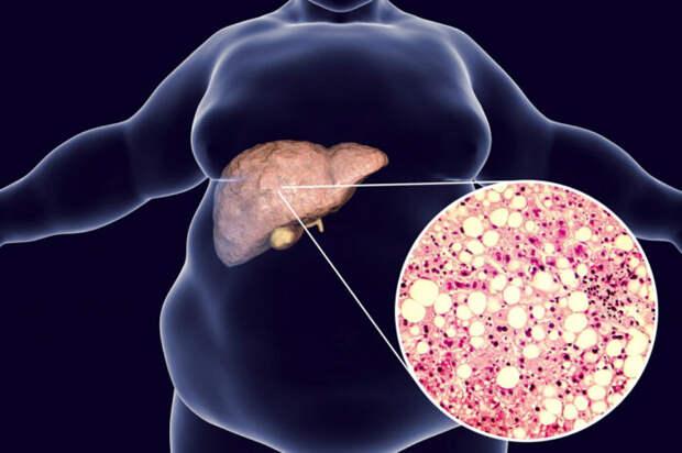 Профессор Япрак: Ожирение печени все чаще встречается у худых