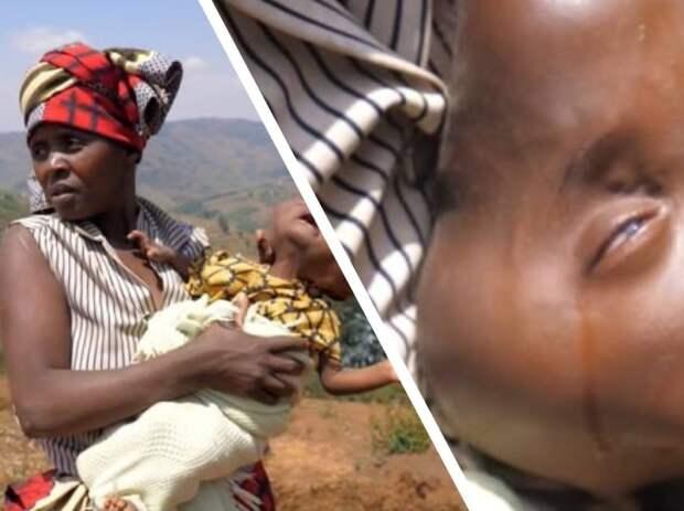 Многодетная мать родила ребенка, голова которого напоминает грушу, его назвала исчадием ада и предложили избавиться
