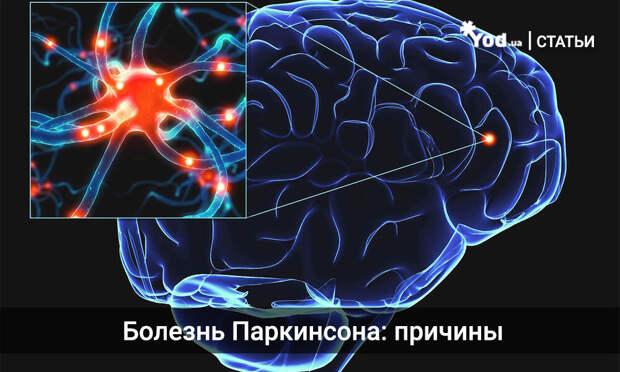 Болезнь Паркинсона: причины, симптомы и лечение паркинсонизма