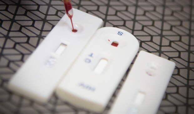 ЖителиНижнего Тагила смогут пройти анонимное экспресс-тестирование наВИЧ