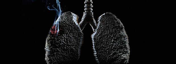 Бронхит курильщика: вы все еще курите?