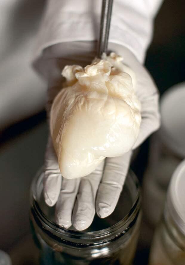 Сердце свиньи, в котором удалены все клетки и  оставлен только каркас
