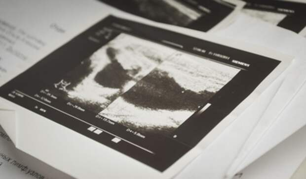 Систему массового скрининга для рентгена грудной клетки получит ГБ№1 Нижнего Тагила
