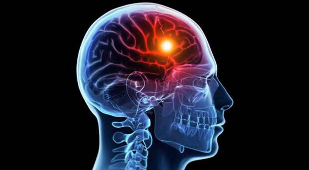 Американец удалил часть мозга, чтобы избавиться от страха смерти