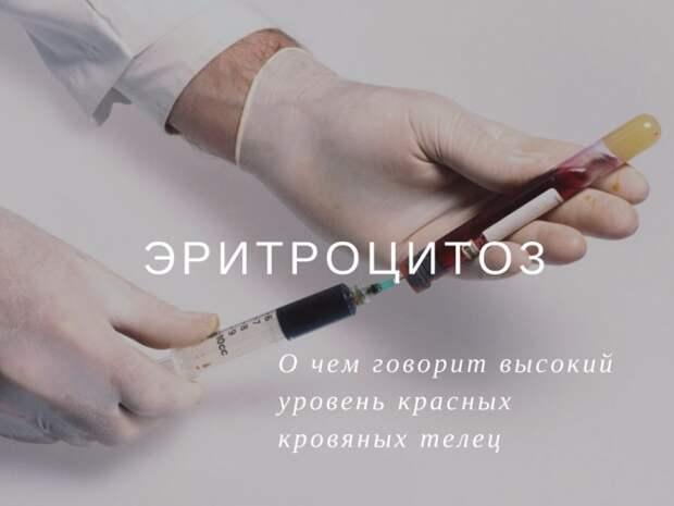 Эритроциты в крови повышены: причины, симптомы, лечение