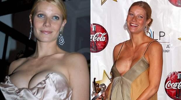7 знаменитых девушек, которые обнажают грудь на людях