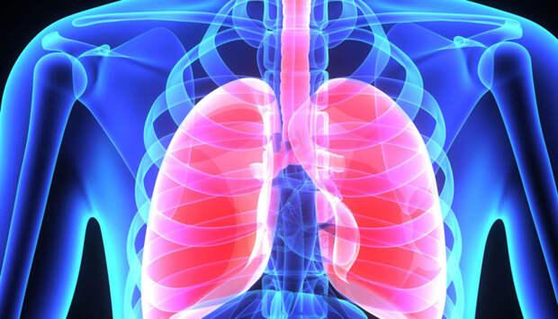 Внебольничная пневмония стала причиной госпитализации 11 человек