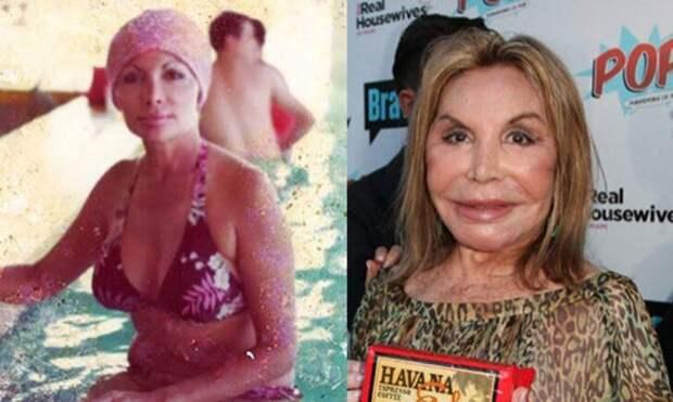Красота не вечна: Медийные жертвы пластической хирургии