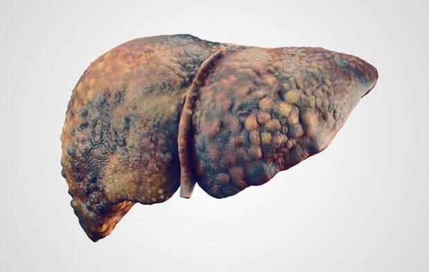 shutterstock_511062427-liver-disease-eranicle