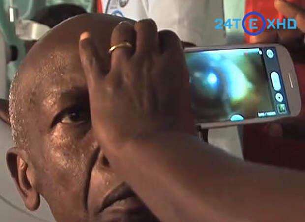 Офтальмологи смогут проводить осмотр глаз с помощью простого смартфона