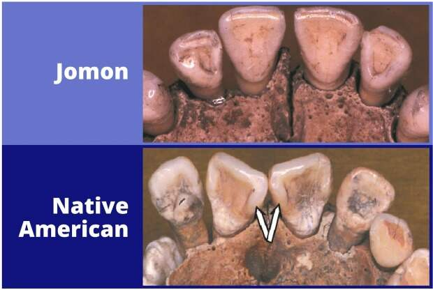 Анализ морфологии зубов опроверг гипотезу о заселении Америки из Японии