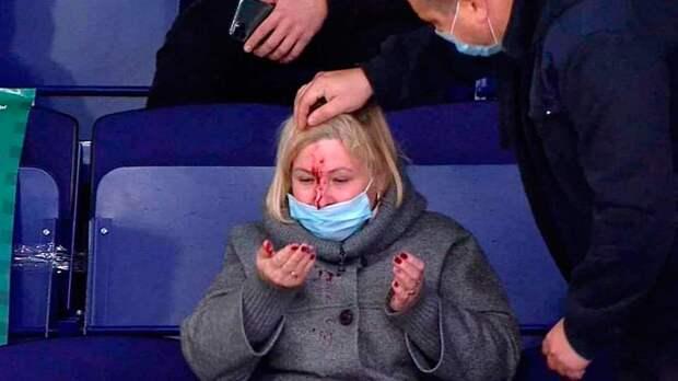 В Казани женщина получила удар шайбой в лицо во время матча «Ак Барс» — «Динамо»
