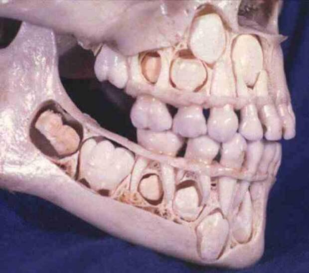 Череп ребенка до выпадения молочных зубов интераесное, факты, фото