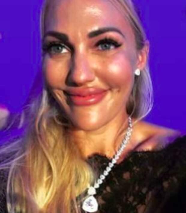 Звезда турецкого сериала «Великолепный век» изуродовала себе лицо