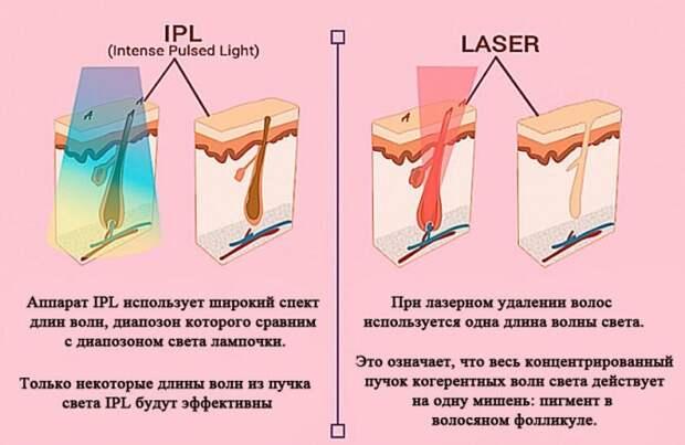 Как выбрать свой лазер для удаления волос? Какие лазеры бывают: александрит, диодный, неодимовый, IPL
