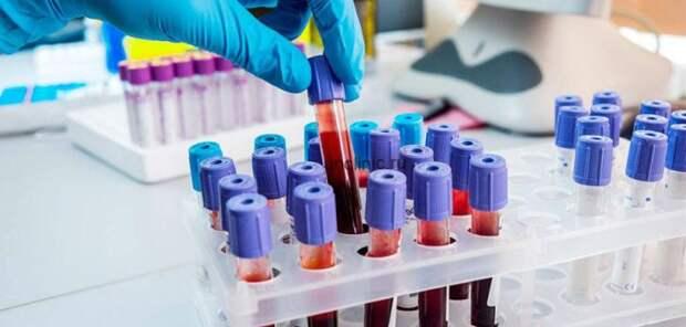 Простой анализ крови поможет определить риски развития диабета и гипертонии