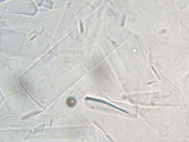 Пять сортов мёда под микроскопом