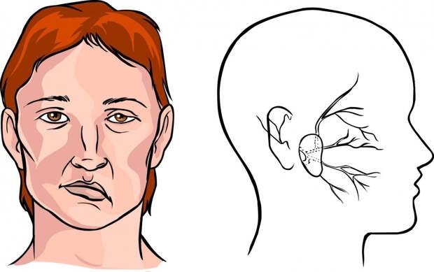 Причины, которые вызывают инсульт, различны, и зависят от разновидности данного заболевания. Существует 2 вида инсульта.