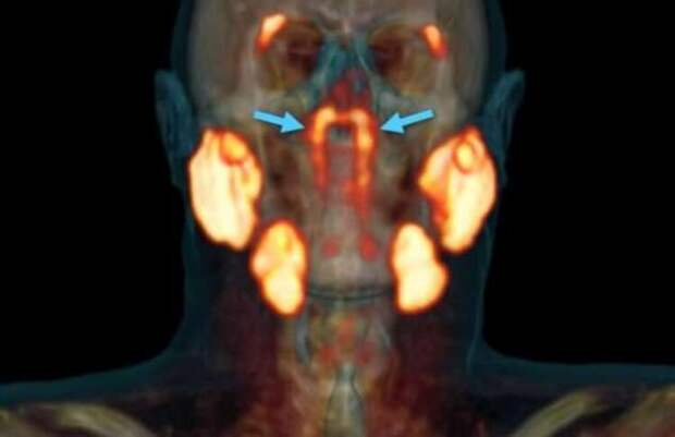 В человеческом организме найден новый орган. Для чего он нужен? (5 фото)