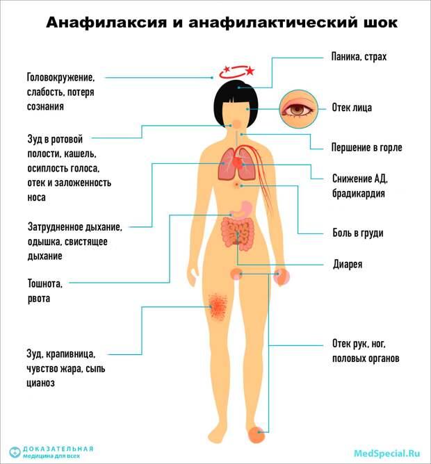 анафилаксия, анафилактический шок