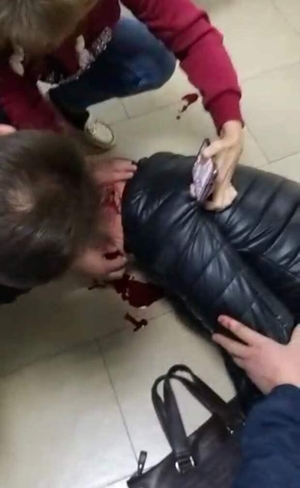 Избитый в банке волгоградец в коме, дома его ждёт 12-летняя дочь