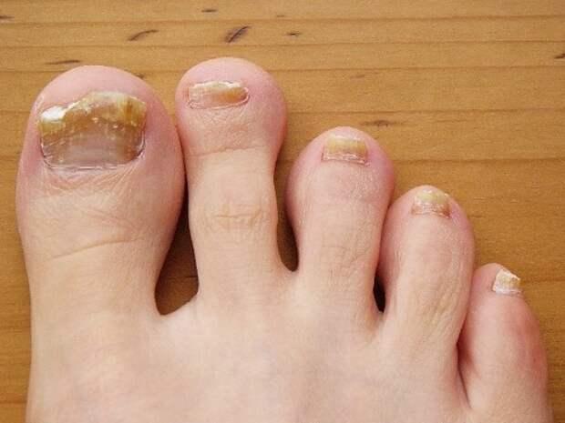 Народные средства лечения грибка на ногтях