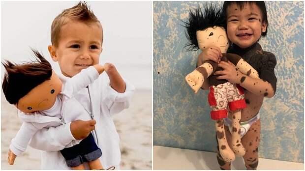 Социальный работник делает кукол-двойников для детей с физическими особенностями