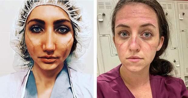 «Эти раны не пройдут — они останутся внутри нас»: фото девушек-медиков со следами от масок налицах