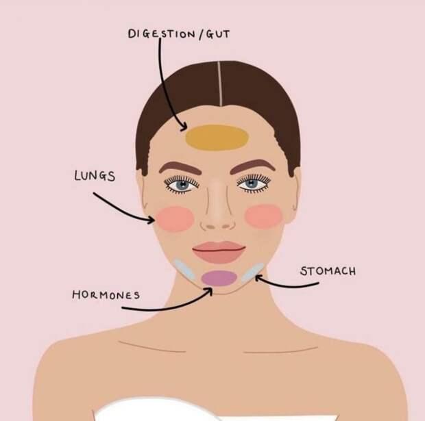 Высыпания на лице, которые отражают проблемы в организме