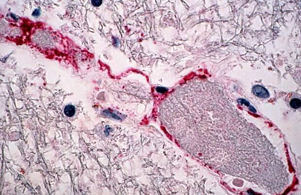 Будет ли новая эпидемия вируса Нипах, чем характерно новое заболевание