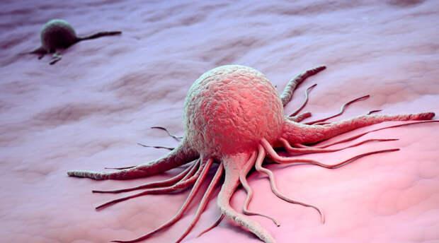 Новый шаг в определении онкологии. Поиск фрагмента гена