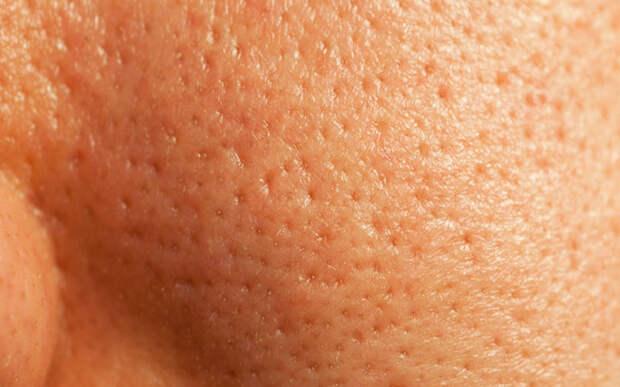 Как сузить расширенные поры: советы о пошаговом уходе за кожей
