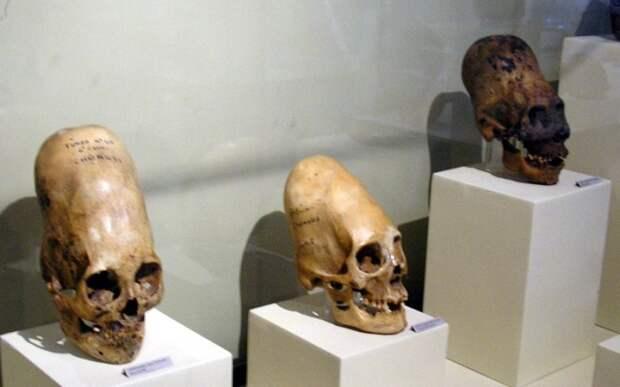 Черепа культуры Паракас на выставке в музее города Ика в Перу. | Фото: commons.wikimedia.org.