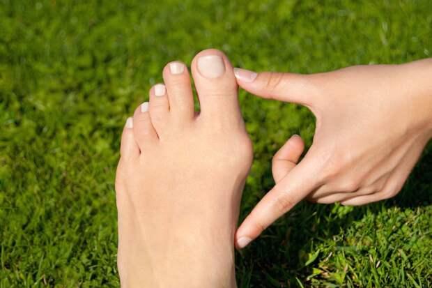 Простые и безопасные способы борьбы с «косточкой» на ноге