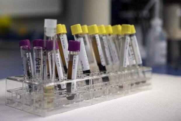 В России за сутки выявили 9 462 случая заражения коронавирусом