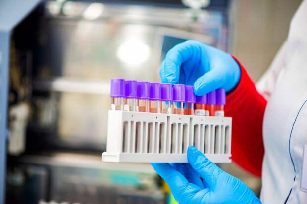 На Кубани за сутки выявили 117 новых случаев заражения COVID-19