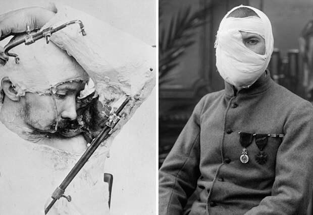 Ужасы Первой мировой войны.