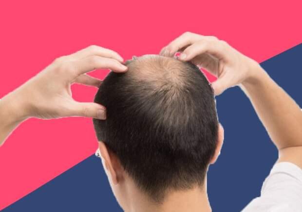 Растим волосы: что такое миноксидил и как его использовать