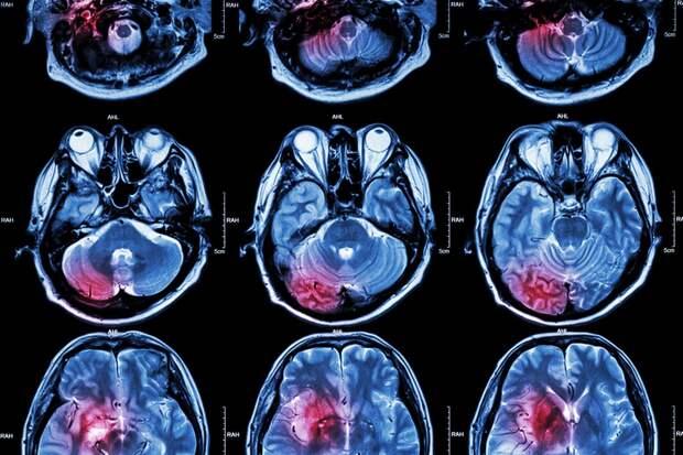 Эффект осознанности поможет справиться с реальной физической болью